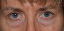 Eyelid Surgery Before Photo by David Rapaport, MD; New York, NY - Case 40504