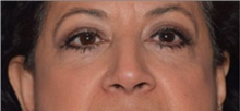 Eyelid Surgery After Photo by David Rapaport, MD; New York, NY - Case 40505