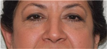 Eyelid Surgery Before Photo by David Rapaport, MD; New York, NY - Case 40505