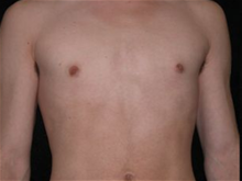 Male Breast Reduction After Photo by Michelle Copeland, MD, DMD, FACS, PC; New York, NY - Case 25871