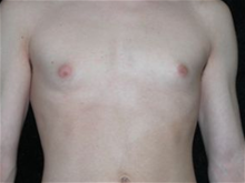Male Breast Reduction Before Photo by Michelle Copeland, MD, DMD, FACS, PC; New York, NY - Case 25871
