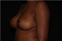 Breast Reduction After Photo by Michelle Copeland, MD, DMD, FACS, PC; New York, NY - Case 38903
