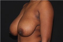 Breast Reduction Before Photo by Michelle Copeland, MD, DMD, FACS, PC; New York, NY - Case 38903