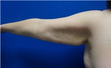 Arm Lift Before Photo by Niki Christopoulos, MD, FACS; Chicago, IL - Case 35272