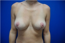Breast Lift After Photo by Niki Christopoulos, MD, FACS; Chicago, IL - Case 35273
