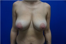 Breast Lift Before Photo by Niki Christopoulos, MD, FACS; Chicago, IL - Case 35273