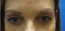 Eyelid Surgery After Photo by Niki Christopoulos, MD, FACS; Chicago, IL - Case 35275