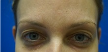 Eyelid Surgery Before Photo by Niki Christopoulos, MD, FACS; Chicago, IL - Case 35275