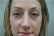 Eyelid Surgery After Photo by Niki Christopoulos, MD, FACS; Chicago, IL - Case 35276