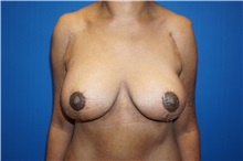 Breast Lift After Photo by Niki Christopoulos, MD, FACS; Chicago, IL - Case 35277