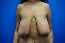 Breast Lift Before Photo by Niki Christopoulos, MD, FACS; Chicago, IL - Case 35277
