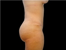 Buttock Lift with Augmentation After Photo by Gaurav Bharti, MD; Huntersville, NC - Case 33928
