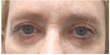 Eyelid Surgery After Photo by Darrick Antell, MD; New York, NY - Case 31837