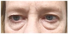 Eyelid Surgery Before Photo by Darrick Antell, MD; New York, NY - Case 31837