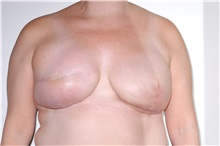 Breast Reconstruction After Photo by Darrick Antell, MD; New York, NY - Case 35042