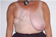 Breast Reconstruction Before Photo by Darrick Antell, MD; New York, NY - Case 35042