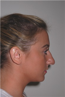 Rhinoplasty Before Photo by Darrick Antell, MD; New York, NY - Case 35043