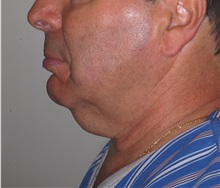 Facelift Before Photo by Darrick Antell, MD; New York, NY - Case 35044
