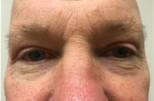 Eyelid Surgery After Photo by Darrick Antell, MD; New York, NY - Case 35045