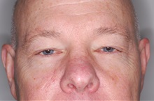 Eyelid Surgery Before Photo by Darrick Antell, MD; New York, NY - Case 35045