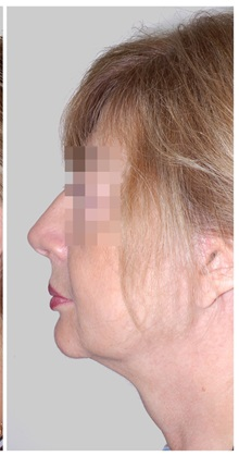 Facelift After Photo by Darrick Antell, MD; New York, NY - Case 36078