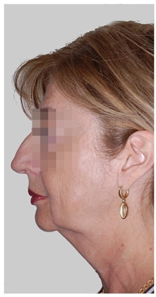Facelift Before Photo by Darrick Antell, MD; New York, NY - Case 36078