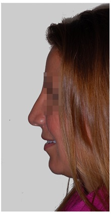 Rhinoplasty After Photo by Darrick Antell, MD; New York, NY - Case 36083