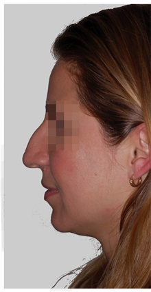 Rhinoplasty Before Photo by Darrick Antell, MD; New York, NY - Case 36083