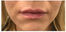 Botulinum Toxin After Photo by Darrick Antell, MD; New York, NY - Case 36087