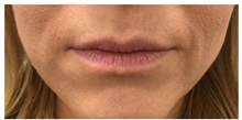 Botulinum Toxin Before Photo by Darrick Antell, MD; New York, NY - Case 36087