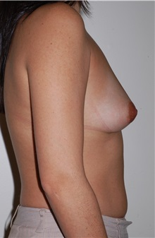 Breast Implant Removal After Photo by Darrick Antell, MD; New York, NY - Case 36140