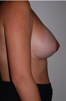 Breast Implant Removal Before Photo by Darrick Antell, MD; New York, NY - Case 36140