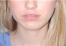 Chin Augmentation After Photo by Darrick Antell, MD; New York, NY - Case 36143