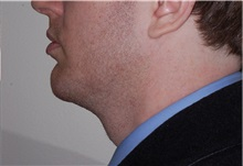 Chin Augmentation After Photo by Darrick Antell, MD; New York, NY - Case 36144