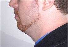 Chin Augmentation Before Photo by Darrick Antell, MD; New York, NY - Case 36144