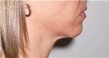Chin Augmentation Before Photo by Darrick Antell, MD; New York, NY - Case 36145