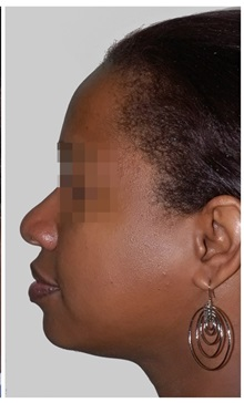 Chin Augmentation After Photo by Darrick Antell, MD; New York, NY - Case 36146