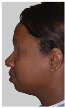 Chin Augmentation Before Photo by Darrick Antell, MD; New York, NY - Case 36146