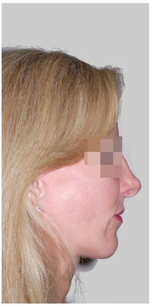 Chin Augmentation After Photo by Darrick Antell, MD; New York, NY - Case 36147