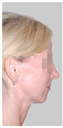 Chin Augmentation Before Photo by Darrick Antell, MD; New York, NY - Case 36147