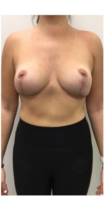 Breast Reconstruction After Photo by Darrick Antell, MD; New York, NY - Case 36150