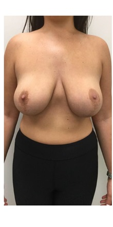 Breast Reconstruction Before Photo by Darrick Antell, MD; New York, NY - Case 36150