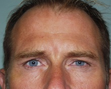 Botulinum Toxin After Photo by Richard Greco, MD; Savannah, GA - Case 2160