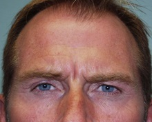 Botulinum Toxin Before Photo by Richard Greco, MD; Savannah, GA - Case 2160