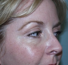 Botulinum Toxin After Photo by Richard Greco, MD; Savannah, GA - Case 2167