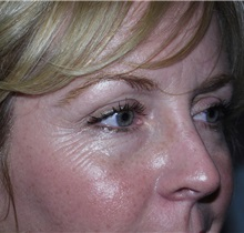 Botulinum Toxin Before Photo by Richard Greco, MD; Savannah, GA - Case 2167