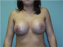 Breast Augmentation After Photo by Richard Greco, MD; Savannah, GA - Case 2222