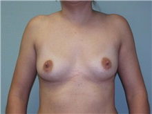 Breast Augmentation Before Photo by Richard Greco, MD; Savannah, GA - Case 2222