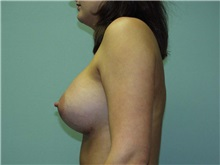 Breast Augmentation After Photo by Richard Greco, MD; Savannah, GA - Case 2222