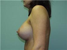 Breast Augmentation Picture